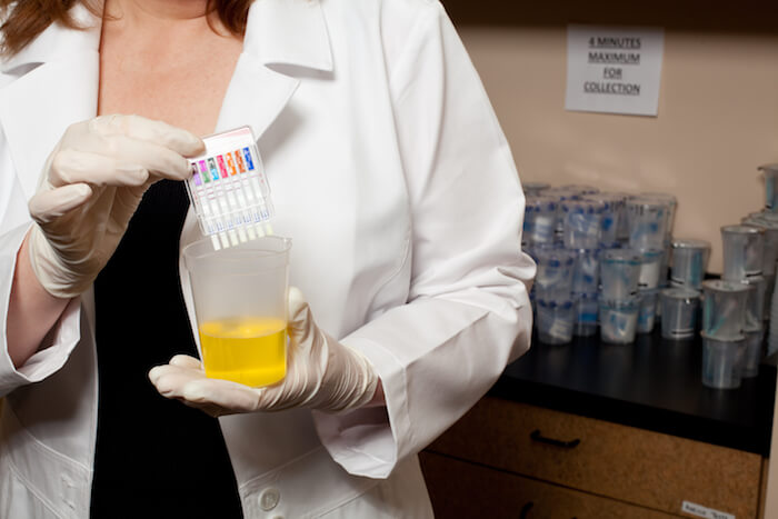 woman holding urine sample