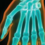 Cannabis is an effective treatment method for arthritis