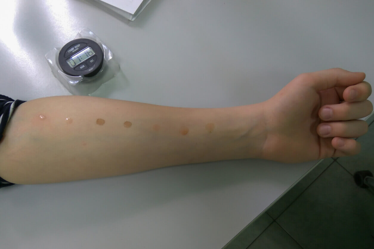 skin prick allergy test