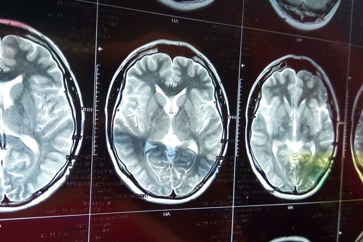 Magnetic resonance scan of the brain with skull. MRI head scan on dark background. X-ray medicine and medication concept