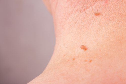 Melanoma is the most dangerous of the skin cancers