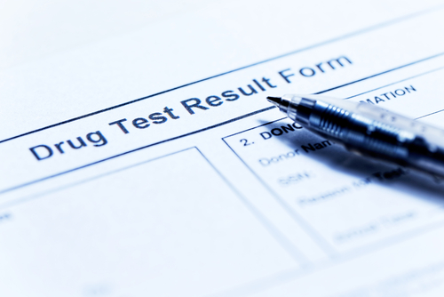 results of a thc urine drug test