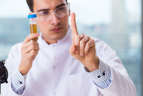 Man conducting urine test